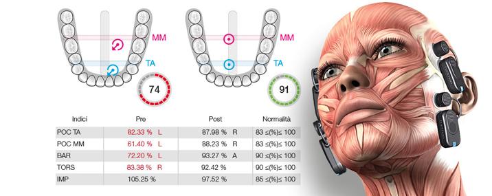 Progettazione BITE su misura Gnatologia